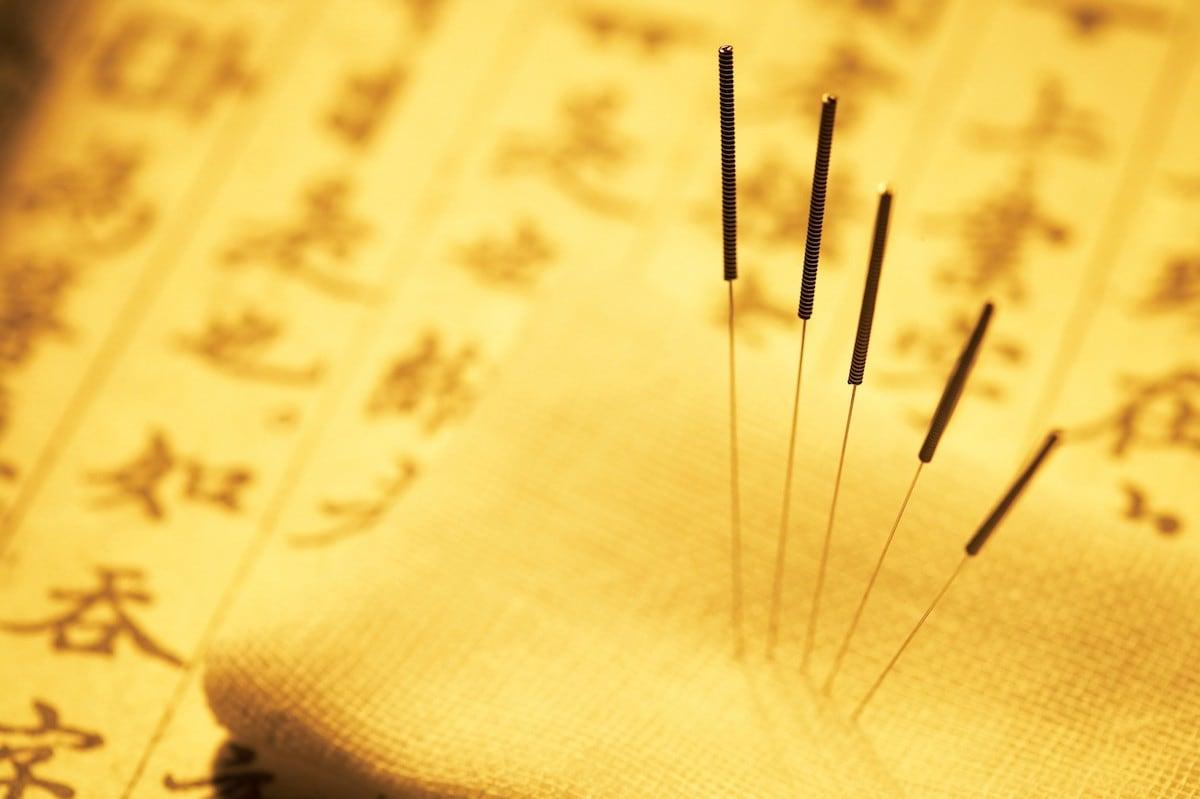 Acupunture Needles